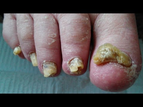 How to Get Rid of Toenail Fungus – Best Toenail Fungus Treatment