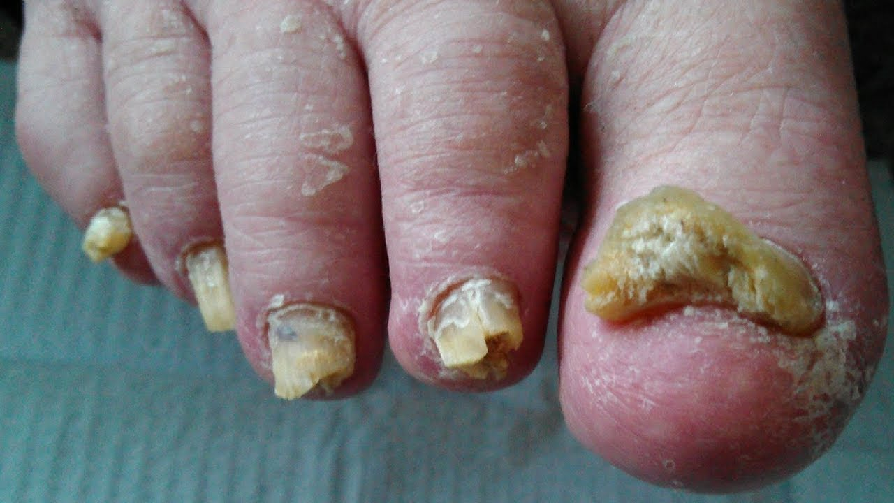 How to Get Rid of Toenail Fungus - Best Toenail Fungus Treatment ...