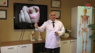 Tırnak Batması Batık Tırnak ve Tedavisi Nedir