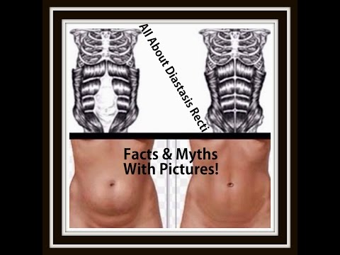 All About Diastasis Recti - Tons Of Facts & Myths Explained With Pictures