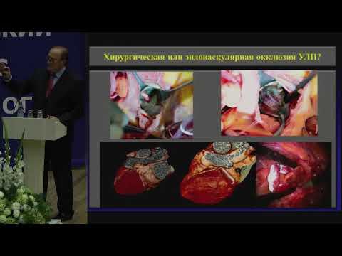 А.Ш. Ревишвили, Фибрилляция предсердий: новые представления о механизмах и методах лечения