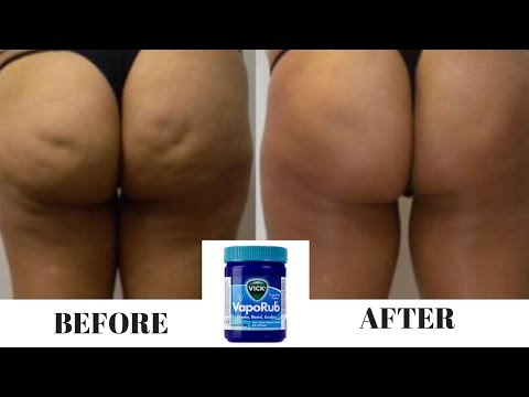 How to Use Vicks Vaporub to Get Rid Of Belly Fat and Cellulite & Even Eliminate Stretch Marks ✓