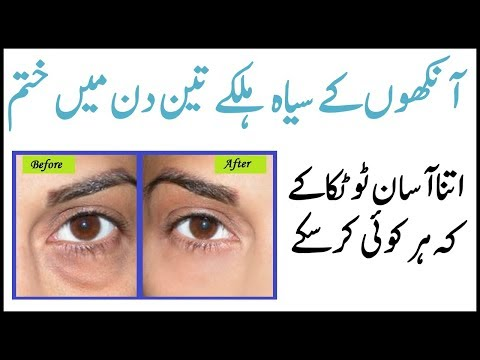 Proper Solution of Eyes Circle in Urdu Hindi | Health Feed thumbnail