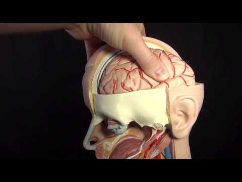 Increased ICP (Intracranial Pressure) Nursing Care Animation