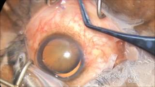 New Management for Subluxated Cataract - Canabrava Sutureless Technique - Double Flanged for CTR