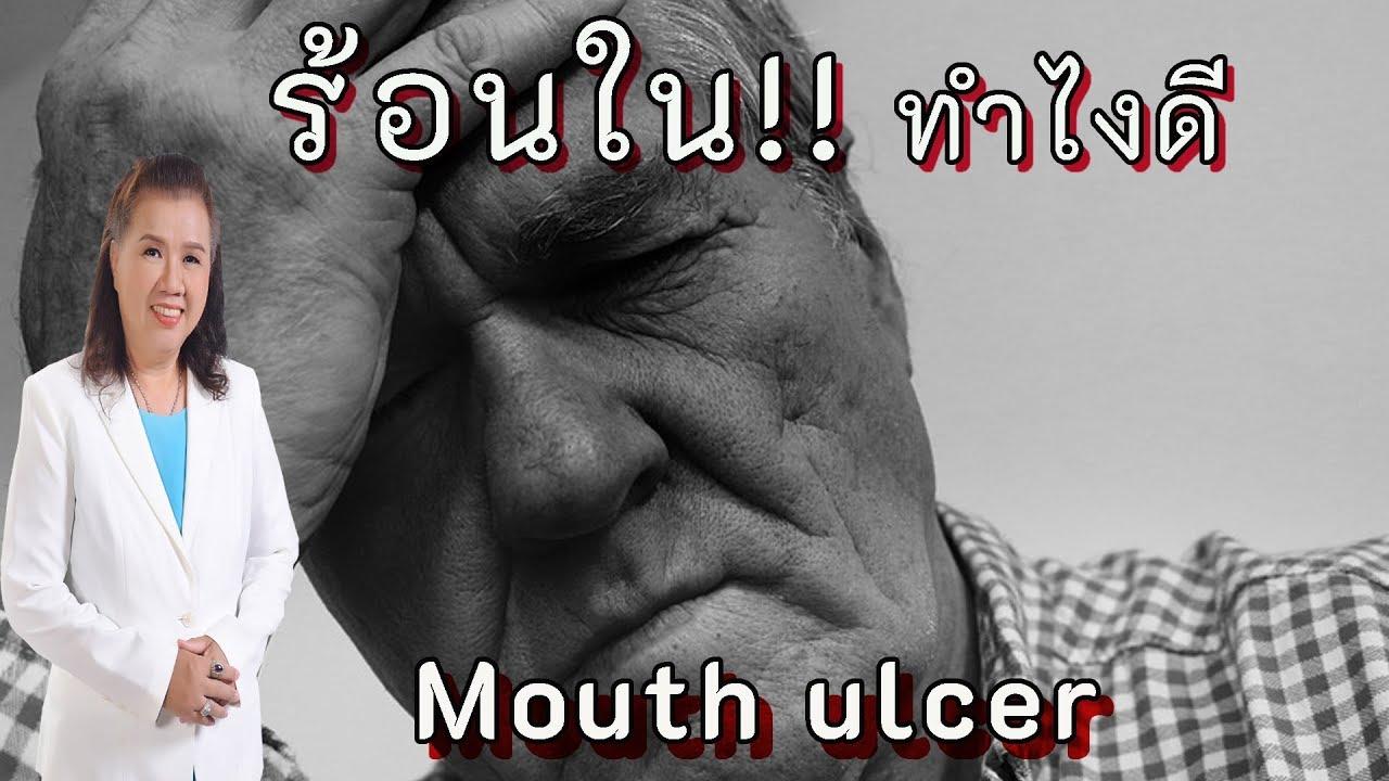 รูัหรือไม่!! ร้อนใน ทำไงหายไวๆ   mouth ulcer   พี่ปลา Healthy Fish
