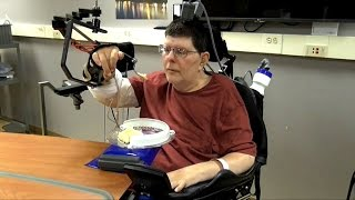 Implant allows paralyzed man to move arm using his thoughts HD