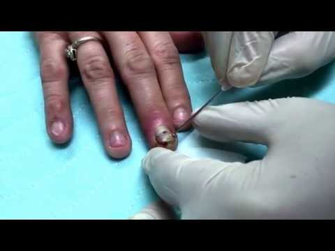 Finger infection Drainage Procedure poster