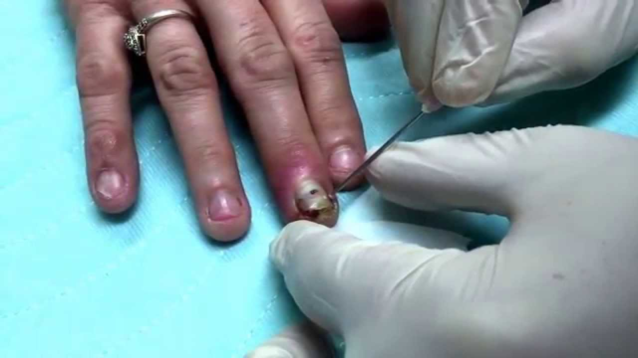 Finger infection Drainage Procedure - YouTube