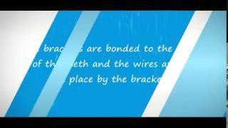Orthodontics (Braces) El Centro, CA  10 FAQs #05