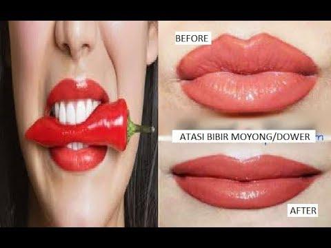 Bibir Anda Monyong Dan Dower Tenang 6 Cara Ini Sudah Terbukti Mengatasi Bibir Monyong Dan Dower Youtube