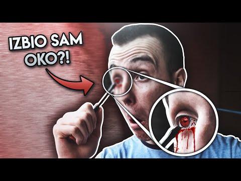 KAKO SAM SE UBO SRAFCIGEROM U OKO (story time)