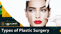 Types of Plastic Surgery Doctor On Call 20-07-2017 PuthuYugam TV Show Online