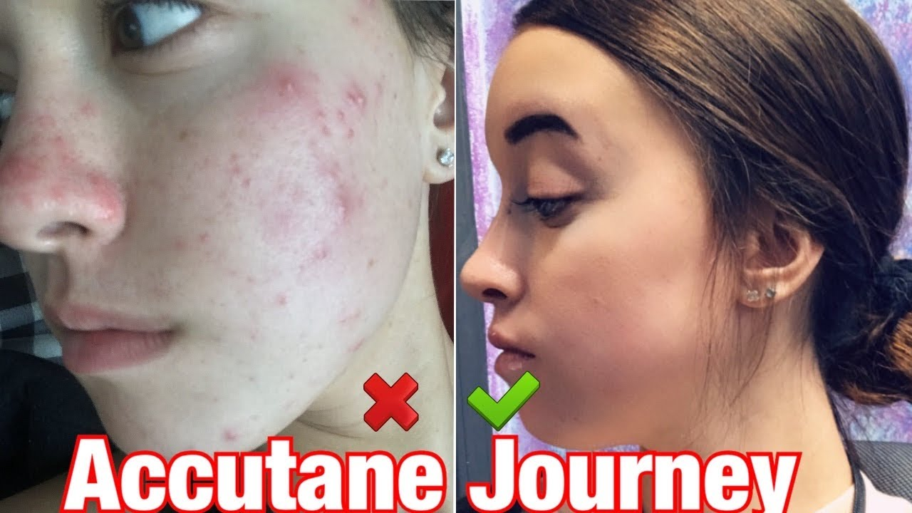 Roaccutane side effects treatment rheumatoid
