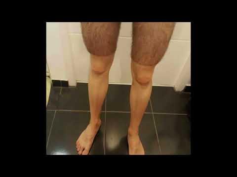 Почему велосипедисты бреют ноги?