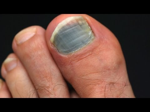 How to Prevent & Treat Black Toenail | Foot Care