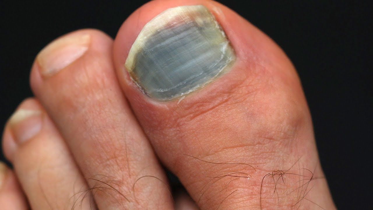 How To Prevent Treat Black Toenail Foot Care Youtube