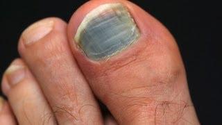 How to Prevent & Treat Black Toenail | Foot Care