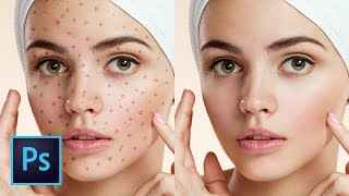 5 Best Ways to Clean Skin Blemishes and Heal Skin Photoshop Tutorial | Educational