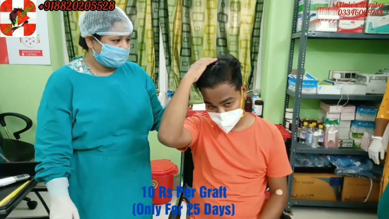 কোথায় hair transplant করেছি ? Hair Transplant Result With Patient Review - Hair Care Bangla