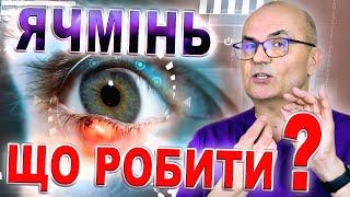 Ячмінь. ЩО РОБИТИ? Pimple in eyes/Ячмень глаза лечение. Purple eyes/Ячмінь. Як лікувати/С.Риков vlog
