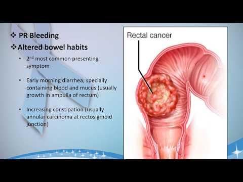 Symptomatology Of Carcinoma Rectum Youtube