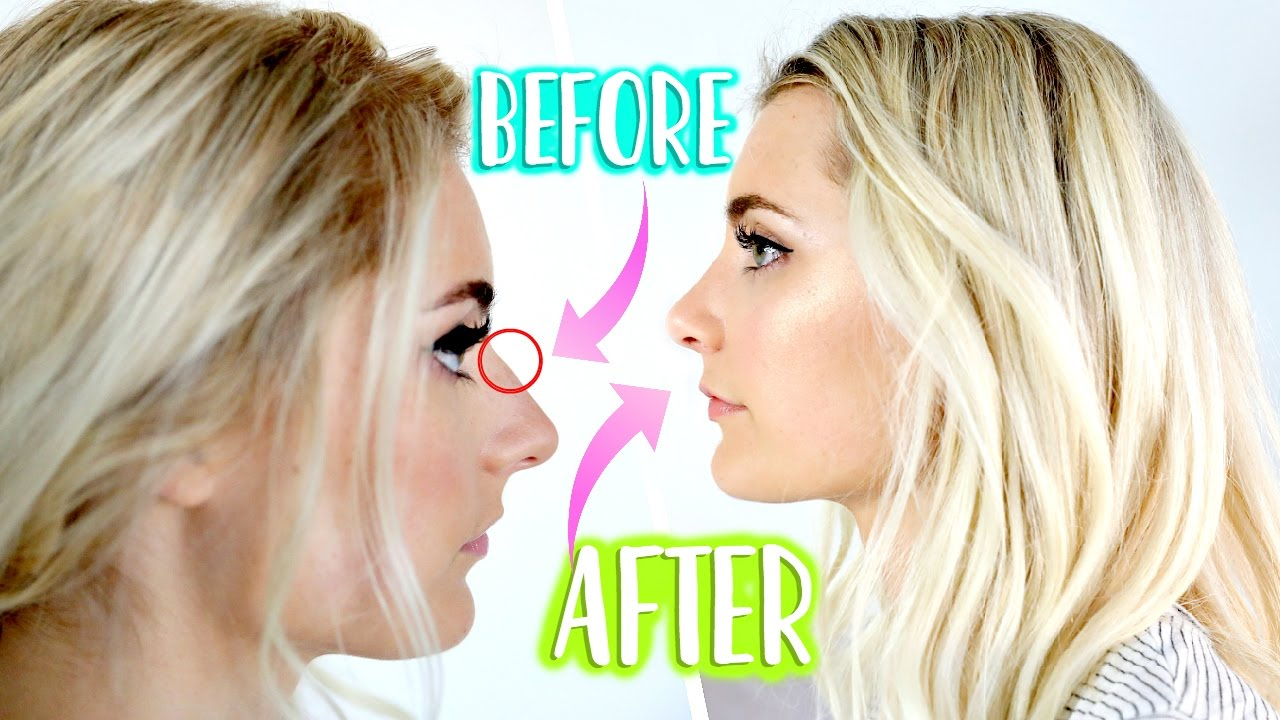 nose job update one year later was it worth it youtube