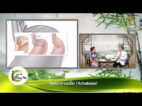 EP.184 - โรคอะคาเลเซีย (Achalasia) โดย พจ.วิวัฒน์ จงหมายลักษณ์