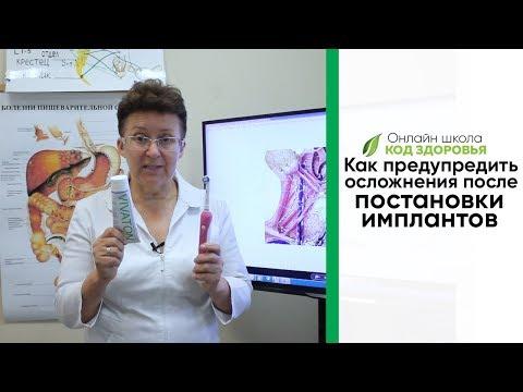 Как предупредить осложнения после постановки имплантов