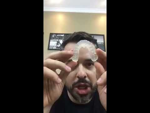 Live Telemetria Dental 04/04/17 - Impressão 3D na odontologia