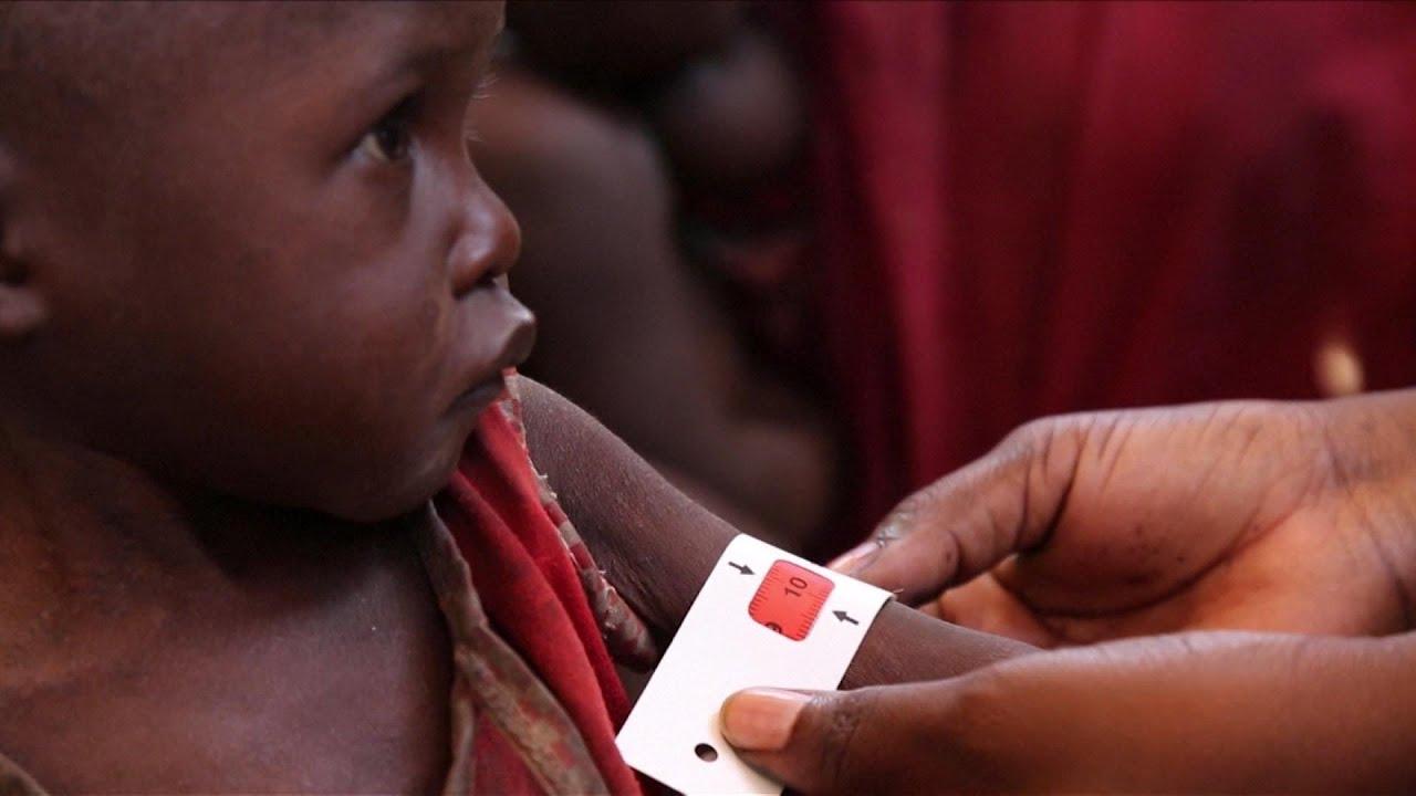UN: Hunger continues to worsen in war zones