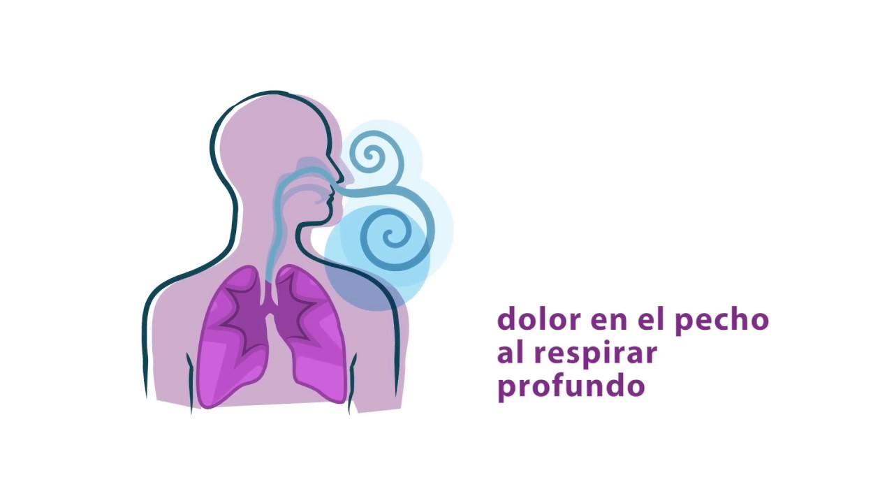 lupus y sangrado de nariz
