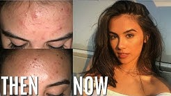 hqdefault - How To Get Rid Of Forehead Acne Naturally