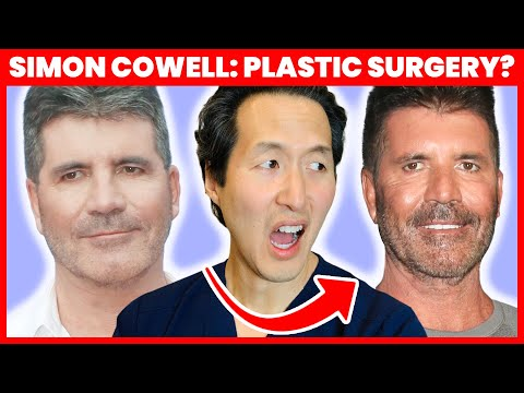Doctor Reacts To Simon Cowell's Plastic Surgery - Was It Botched?