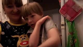 Синдром Кошачьего крика Савельян ( syndrome Cri -du -Chat)