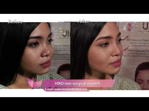 NOSE LIFT USING HIKO THREADS And Restylane dermal fillers - YouTube