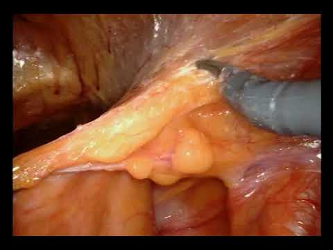 Dr. Jim Hu - Transperitoneal Robotic-Assisted Radical Prostatectomy