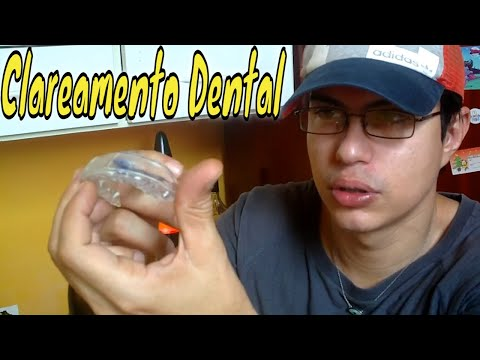 Clareamento Dental Com Moldeiras Youtube