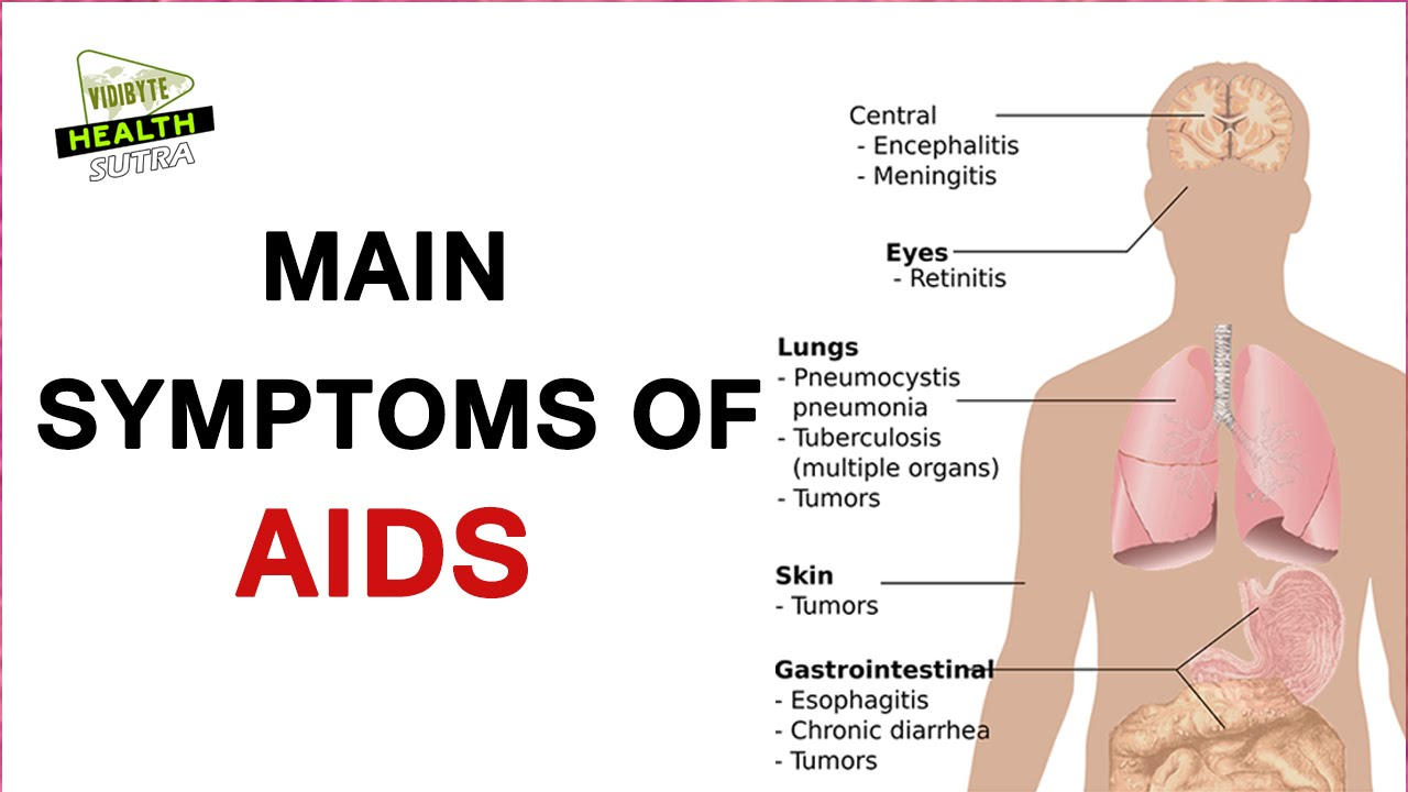 main symptoms of hiv or aids ? - youtube, Human Body