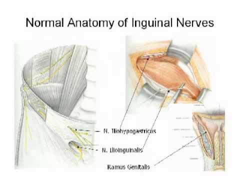 Nerve management and chronic pain after open inguinal hernia repair ...