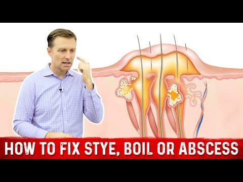 The Deeper Cause Of Stye Boil Or Abscess