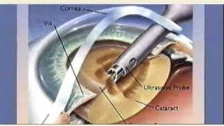 Cataract eye surgery in India at a less payable price.
