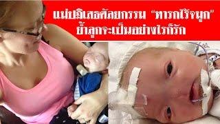 """แม่ปฏิเสธศัลยกรรม """"ทารกไร้จมูก"""" ย้ำลูกจะเป็นอย่างไรก็รัก #สดใหม่ไทยแลนด์  ช่อง2"""