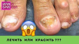 А можно мне покрыть ногти!?? 😱 Зачистка грибковых ногтей 😧 Педикюр 😯 Ирина Брилёва