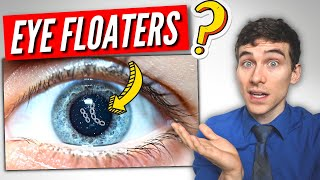3 Must Know Facts About Visual Floaters!