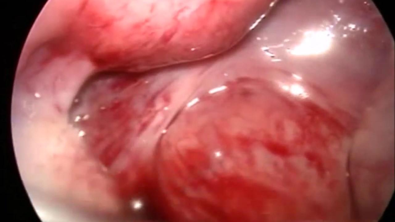tengo quiste hemorragico en ovario izquierdo