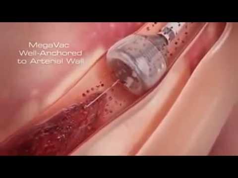 heart stent video (angioplasty)