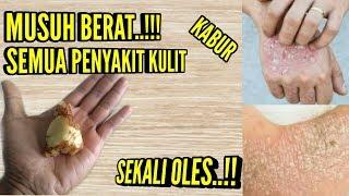 Gunakan cara ini!semua masalah penyakit kulit hilang dan sembuh total obat gatal,kudis kurap|RSH