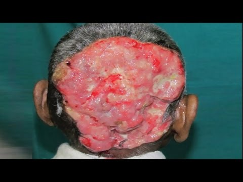 Chernobyl Tumors, Cysts, Cancer, Deformities and Mutants...