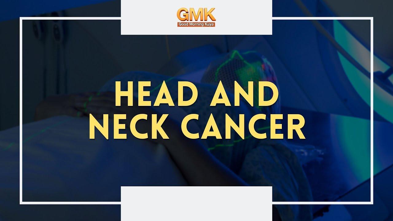 Head and Neck Cancer (Part 2) | Usapang Pangkalusugan